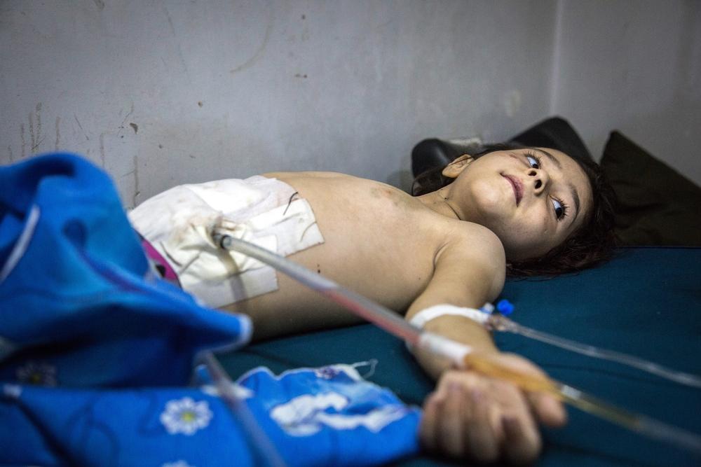 Siria: Riprendono gli attacchi  colpiti due ospedali. Bambini salvi nel sotterraneo