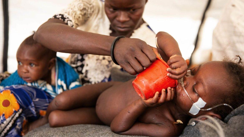 Cos'è la malnutrizione